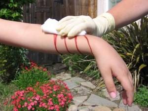 severe bleeding
